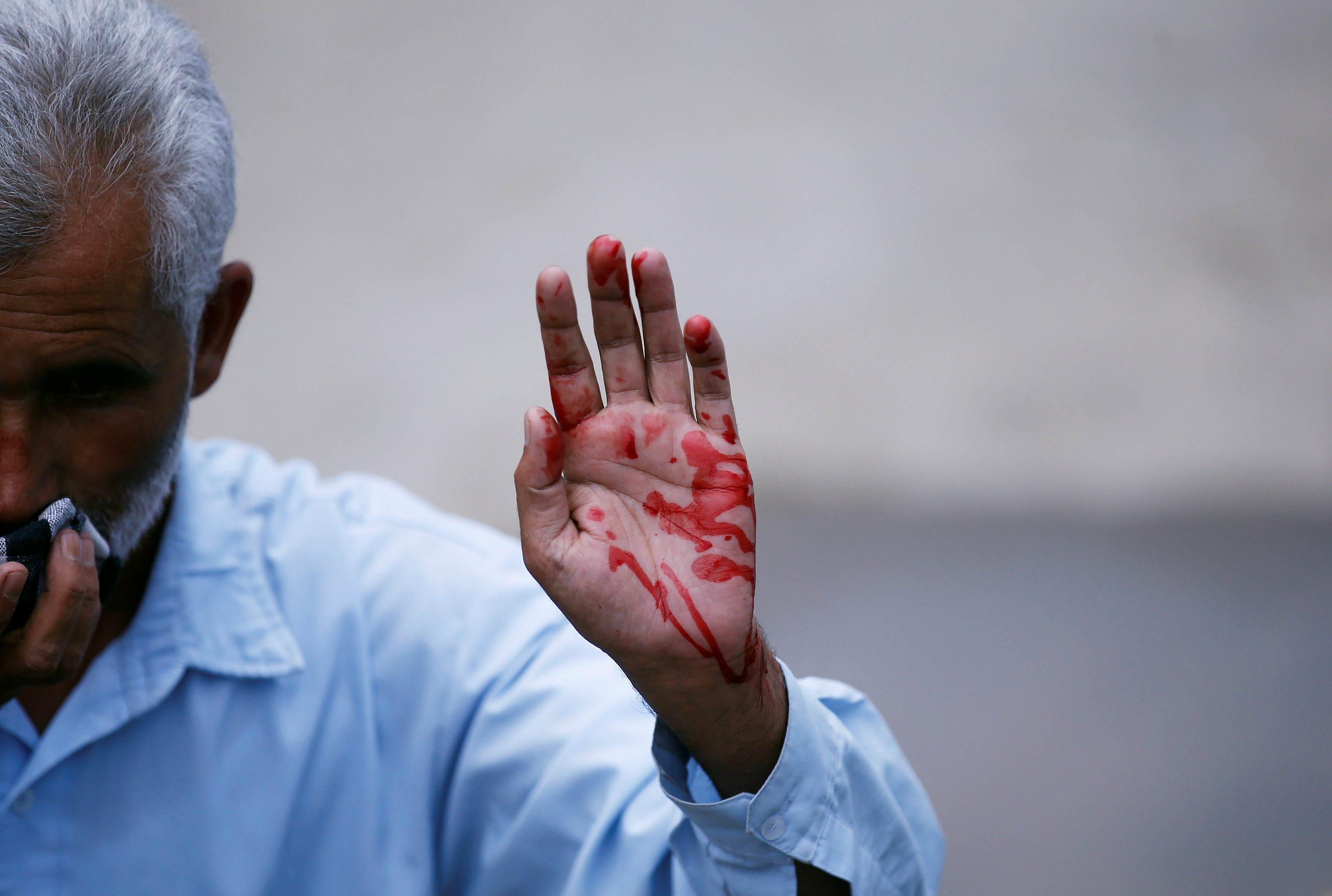 A supporter of Kashmiri lawmaker Sheikh Abdul Rashid, also known as Engineer Rashid, shows his hand after he got injured during a scuffle with Indian police during a protest in Srinagar, against the recent killings in Kashmir, India August 4, 2016. REUTERS//Danish Ismail